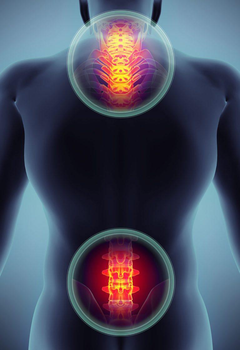 Cervical and Lumbar Radiculopathy
