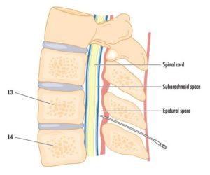 Lumbar Transforaminal Epidural Steroid Injection