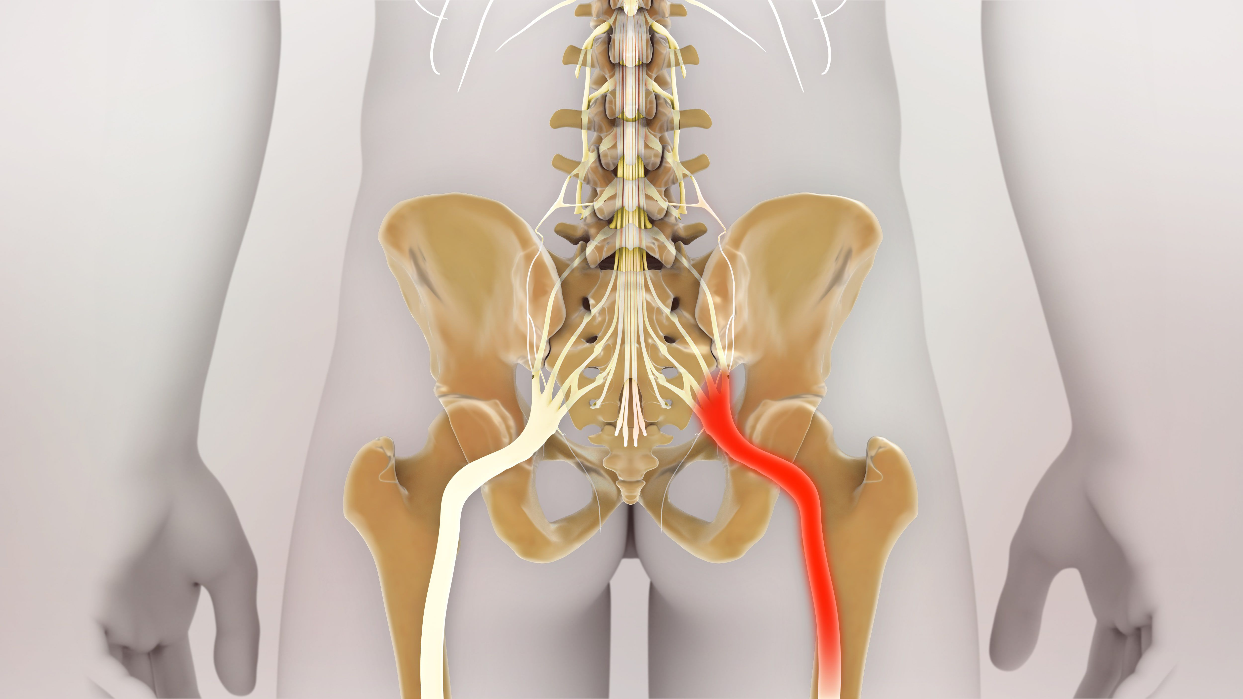 Hip Related Sciatica (Piriformis Syndrome and Deep Gluteal Syndrome): What is it, What are the Symptoms and What Causes It?
