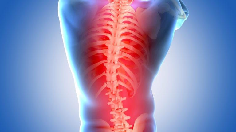 X-ray of back indicating pain